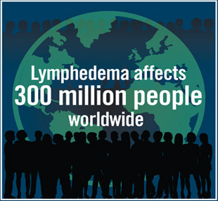Lymphedema affects 300 Million people worldwide